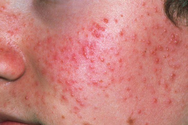 Picture of acne spots.
