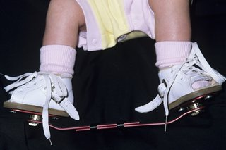 Close-up of a baby's feet. The baby is wearing a pair of white boots that are attached to a bar.