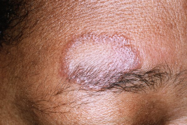 Picture of sarcoidosis