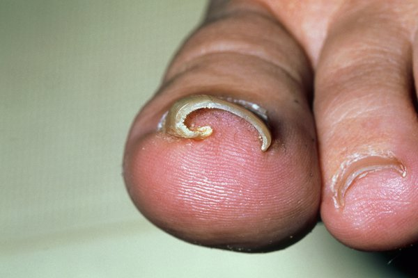 A toenail curving into the big toe.