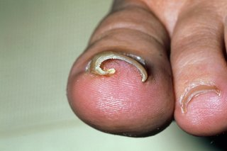 A toenail curving into the big toe.