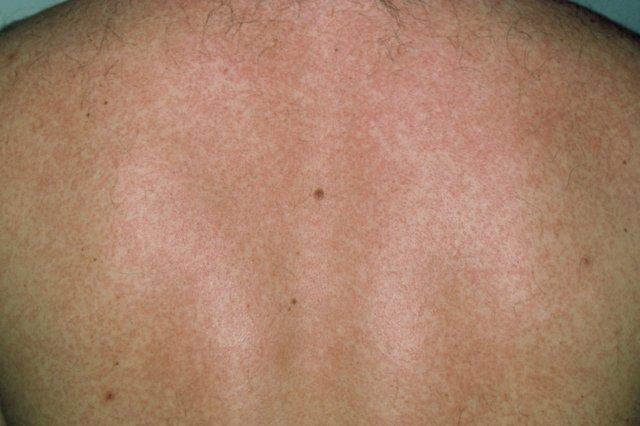 S_0918_rubella_rash_on_white_skin_M2100115.jpg