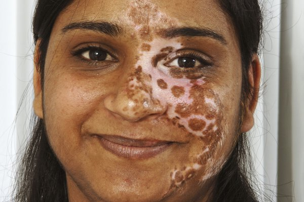 Picture of a woman with segmental vitiligo affecting the face