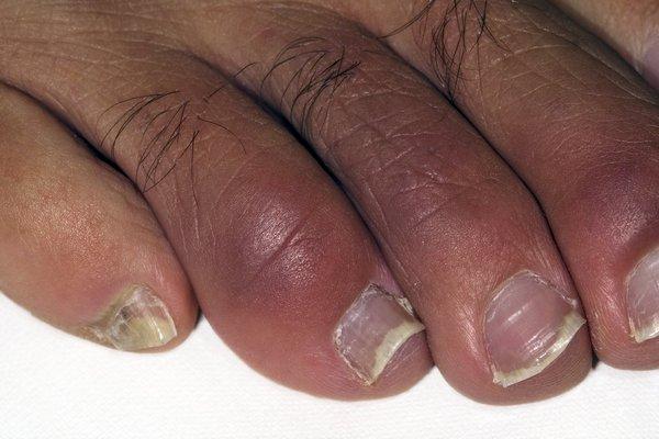 Red, swollen toes on black skin