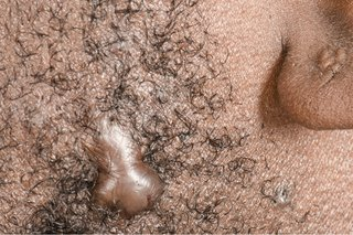 Keloid scar in the beard hair of a man with dark skin