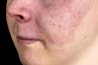 A port wine birthmark on a person's cheek, nose and upper lip