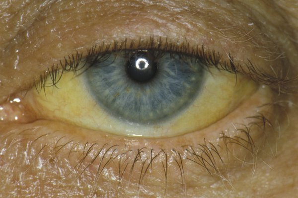 An eye with a blue iris. The white part of the eye has turned yellow. The yellow is darker at the corners of the eye.