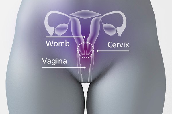 The cervix is between the vagina and the womb