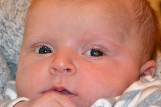 A close-up of a baby's face showing the characteristic white reflection in the pupil of the eye