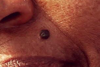 A harmless, black mole on dark skin
