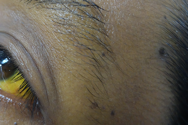 Yellowing of the white part of the eye and the skin under the person's black eyebrow hairs. Shown on dark brown skin.