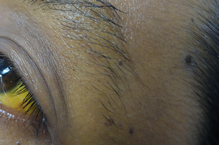 Yellowing of the white part of the eye and the skin under the person's eyebrows. Shown on dark brown skin.