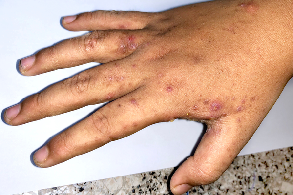 Dark spots on brown hand caused by scabies