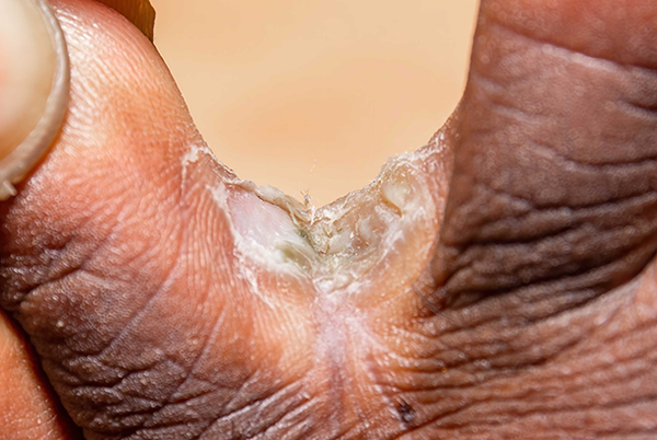 Athlete's foot on dark brown skin. Close-up of 2 toes. Between the toes is a scaly white and green patch.