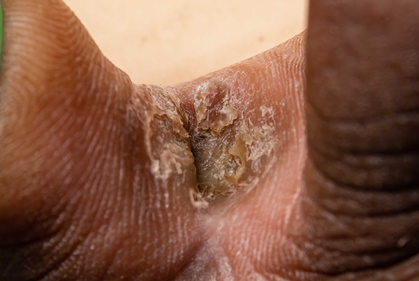 Athlete's foot on dark brown skin. Close-up of 2 toes. Between the toes is a flaky, dark brown and slightly white patch.