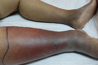 Skin on a person's lower leg is swollen, red, with area of dark brown. A line of black ink is above the swelling. Skin on the other leg is medium brown.