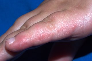 Hand, foot and mouth disease - NHS