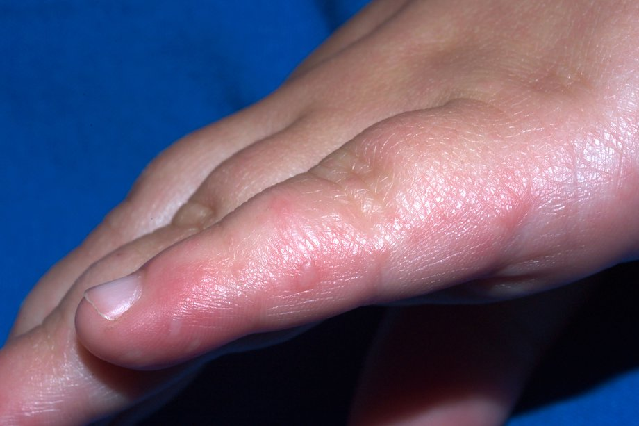 Child's hand, with small, pink blisters on little finger