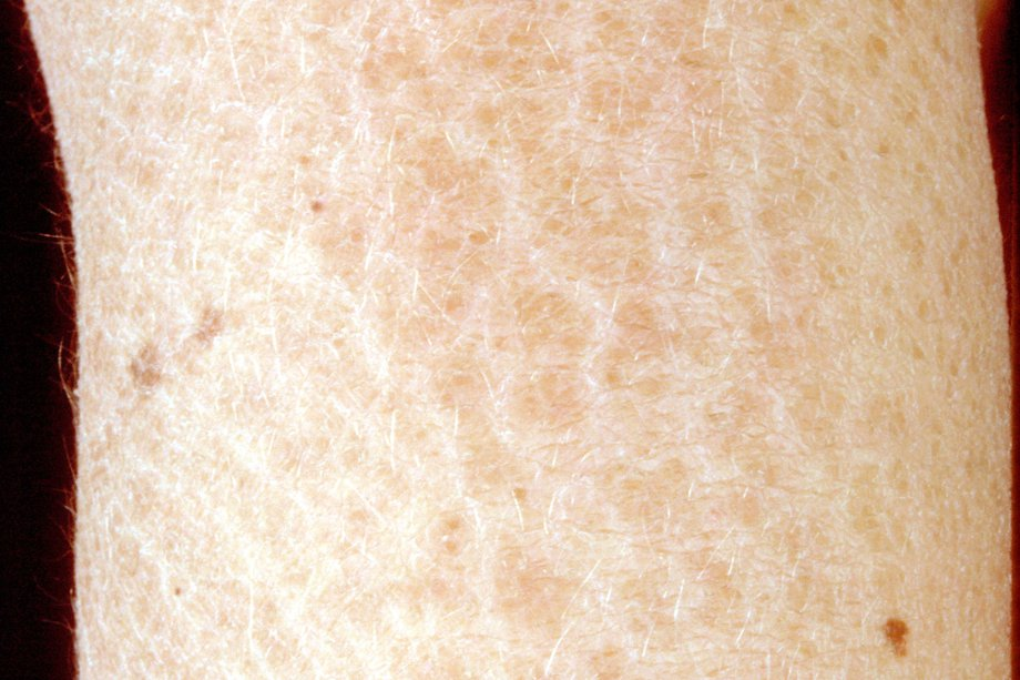 Picture of ichthyosis