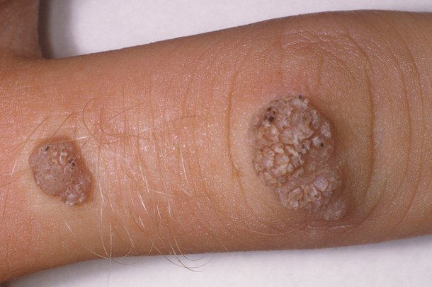 Two warts on an arm