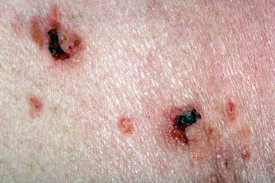 Picture of pemphigus vulgaris rash