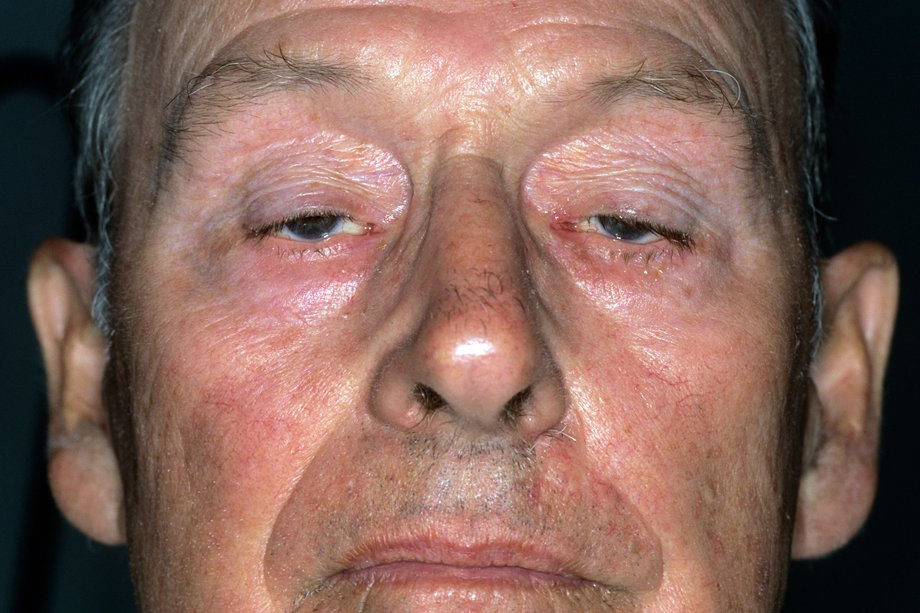 Picture of droopy eyelids caused by myasthenia gravis