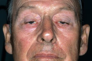Miyastenia gravis neden sarkık göz kapakları olan bir adam bir close-up