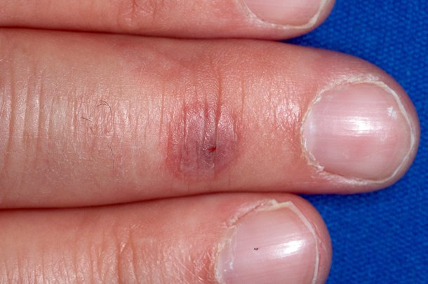 Picture of orf affecting a finger