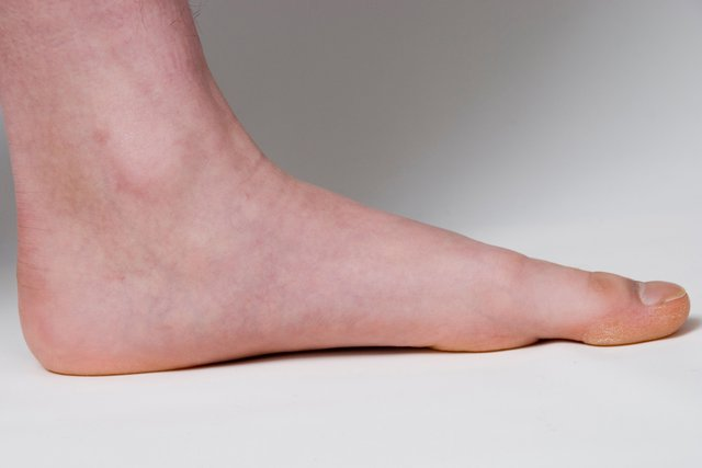 A standing foot with the sole pressed almost flat to the ground and no raised arch