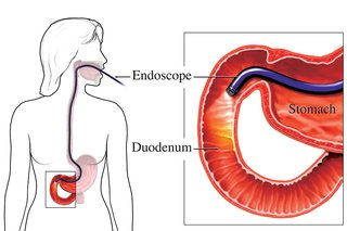 Diagram showing an endoscopy