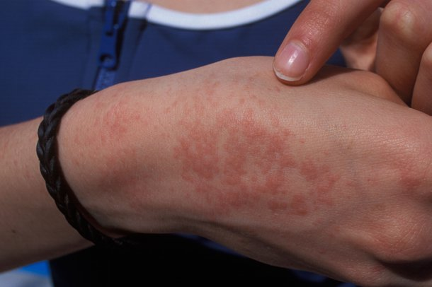 Picture of prickly heat rash