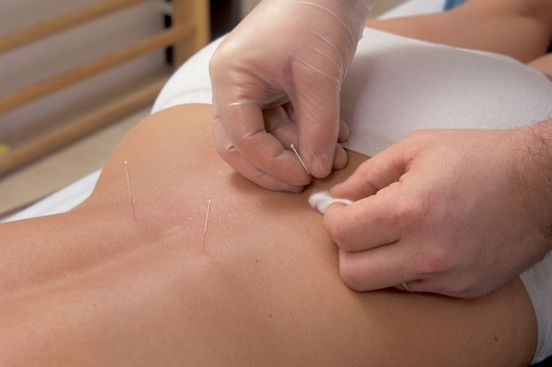 Picture of a person having acupuncture