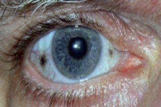 Eye affected by alkaptonuria, with two brown spots on the white of the eye
