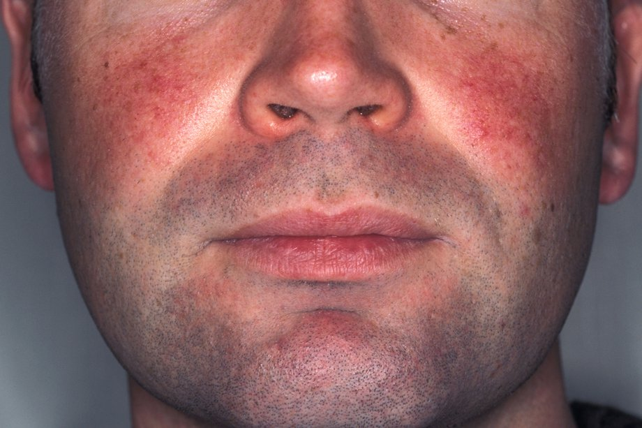 Red spots on face from drinking
