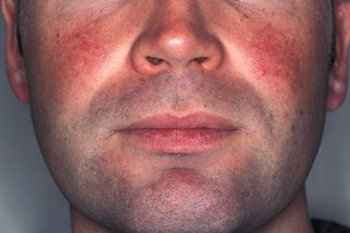 Picture of red patches on a man's cheeks caused by rosacea.