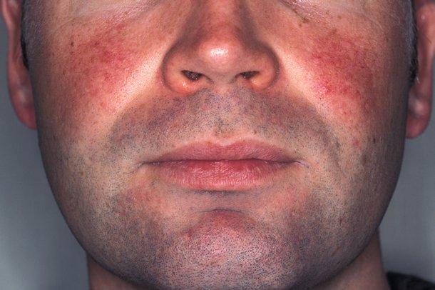 facial acne + redness