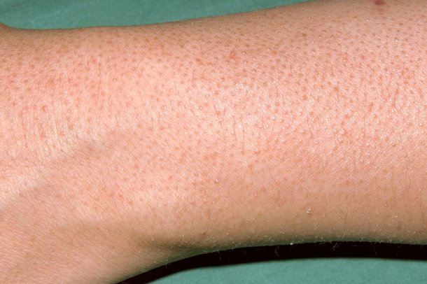"Picture of keratosis pilaris (""chicken skin"") rash"