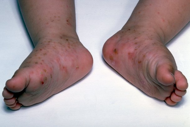 Picture of scabies rash