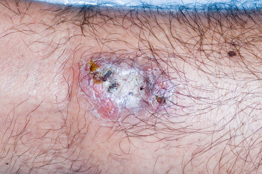 Picture of pyoderma gangrenosum