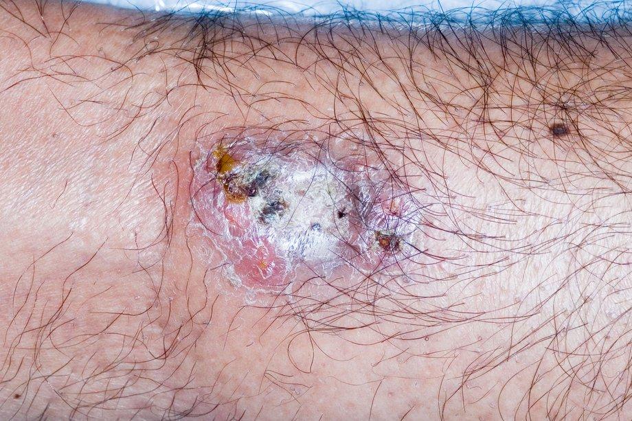 Pyoderma gangrenosum - NHS