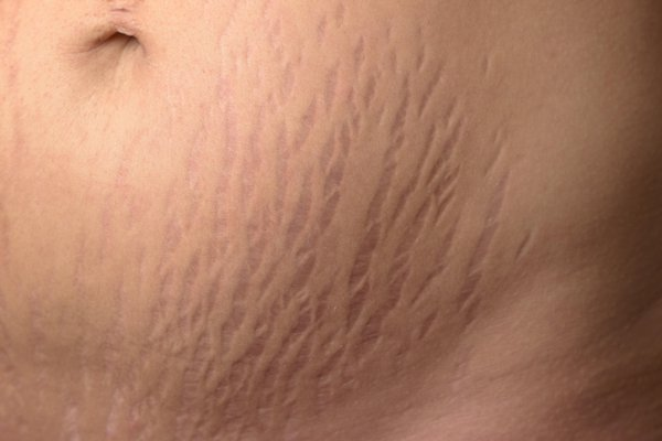 Stretch marks can be pink, red, brown, black, silver or purple. They usually start off darker and fade over time.