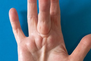 Dupuytren's contracture - NHS