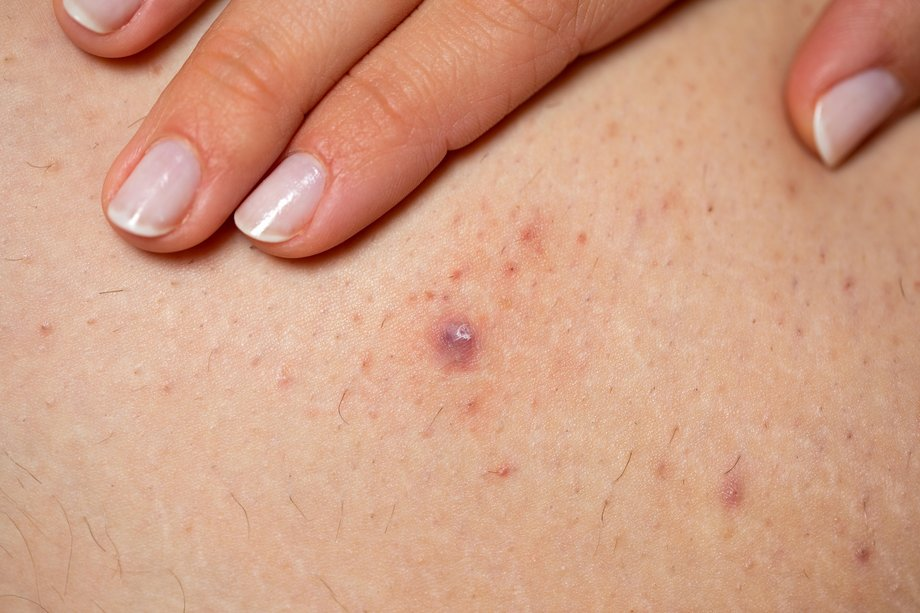 An infected ingrown hair with pus at it centre