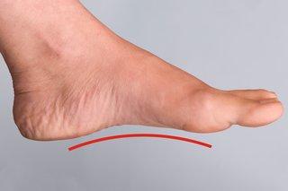 Flat feet - NHS