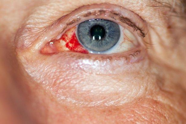 Picture of bleeding in an eye