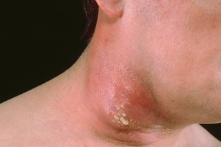 A large carbuncle on a person's neck.