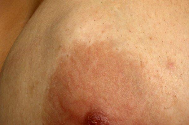 A picture of fibroadenoma
