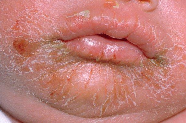 Picture of impetigo rash