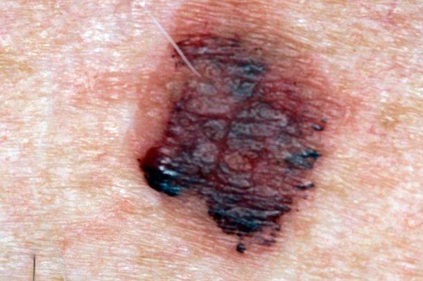 Picture of lentigo maligna melanoma
