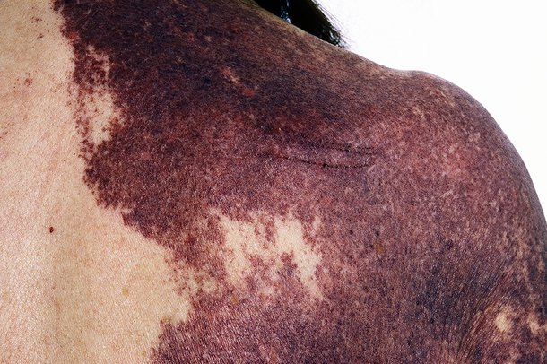 Capillary malformation (port wine stain)